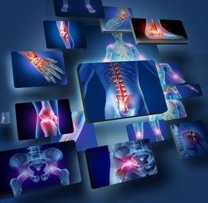 Remedios caseros contra la artritis