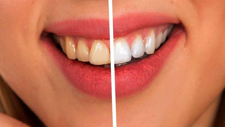 Receta de pasta de dientes casera