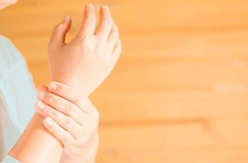 Deformidades articulares de la Artritis Reumatoide