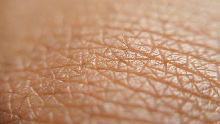 Evitar la piel seca por frío